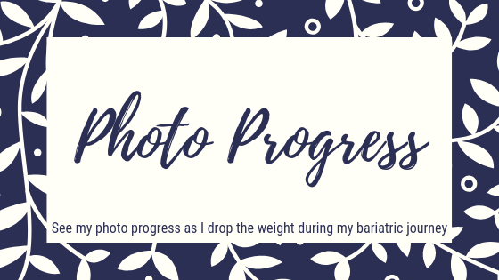 Photo Progress. See my photo progress as I drop the weight during my bariatric journey.